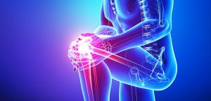 knee pain most common reason to see doctor